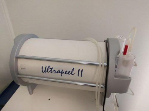 Ultrapeel II